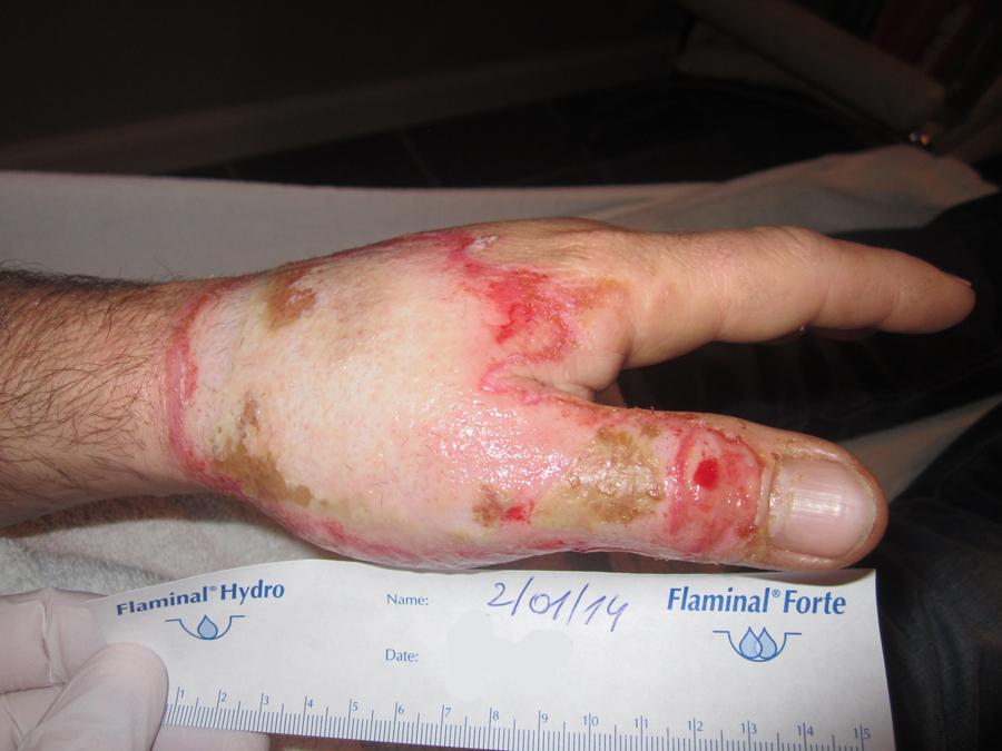 Opvolgen behandeling ingesteld in het brandwondencentrum